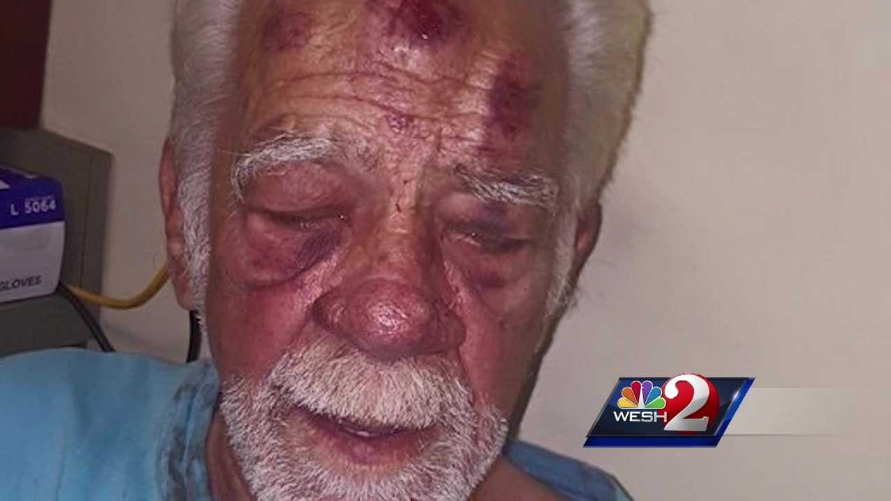 An Orange County man says he was beaten bloody by two women who were after his prescription drugs.