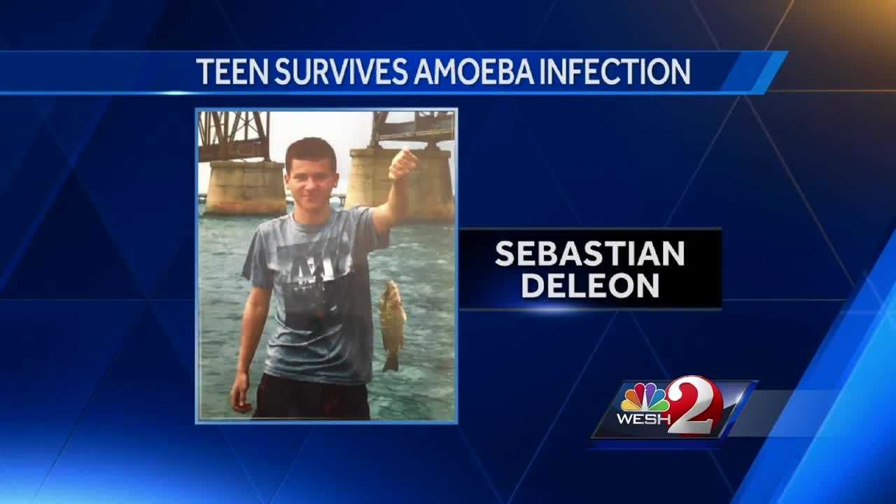 Doctors describe saving life of teen infected with brain-eating amoeba