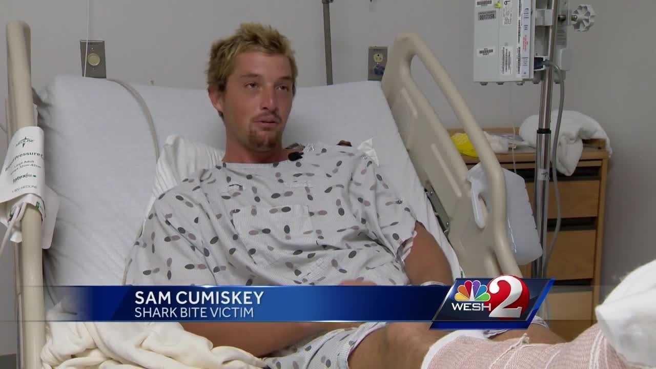 One person was bitten near the jetty on the New Smyrna Beach side. A 25-year-old man, who was bitten on the Ponce Inlet side of the jetty, is recovering from surgery. Claire Metz reports.