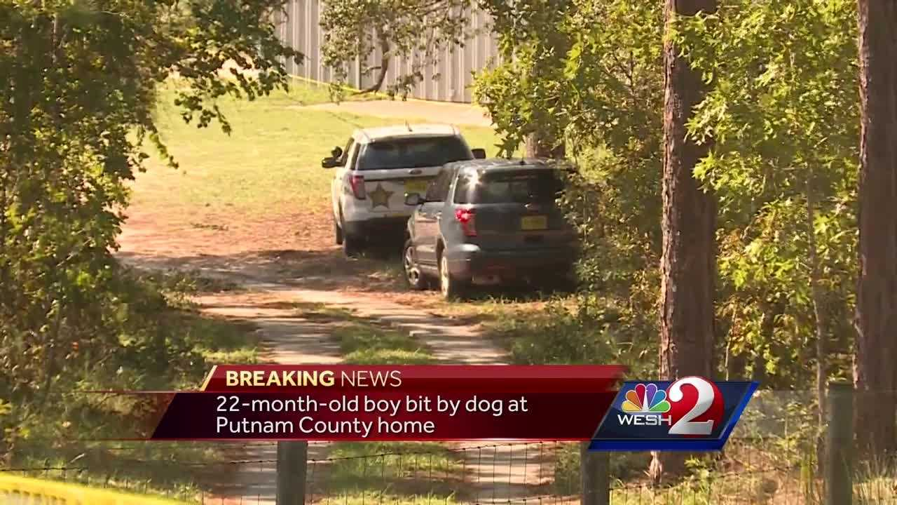 22-month-old bitten by dog in Putnam County