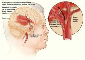 A stroke happens when a blood clot blocks an artery or blood vessel in the brain. When it happens, brain cells near the clot begin to die and brain damage occurs.