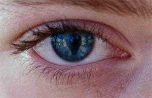 Optophobia: Opening one's eyes is just too stressful for some individuals.