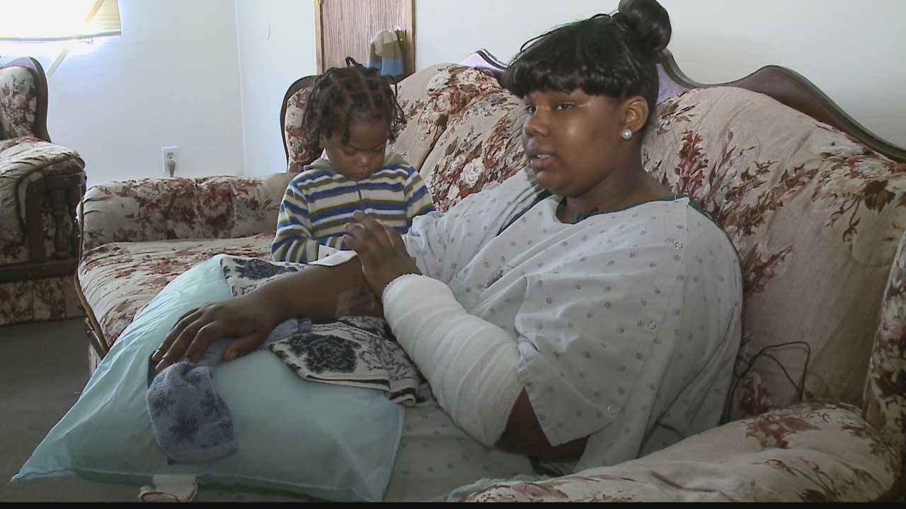 A Milwaukee girl speaks to WISN 12 News one day after being bitten 47 times in a pit bull attack.