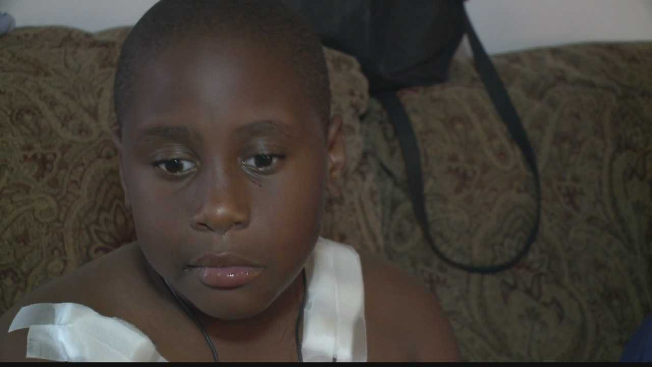 7 year-old survives pit bull attack