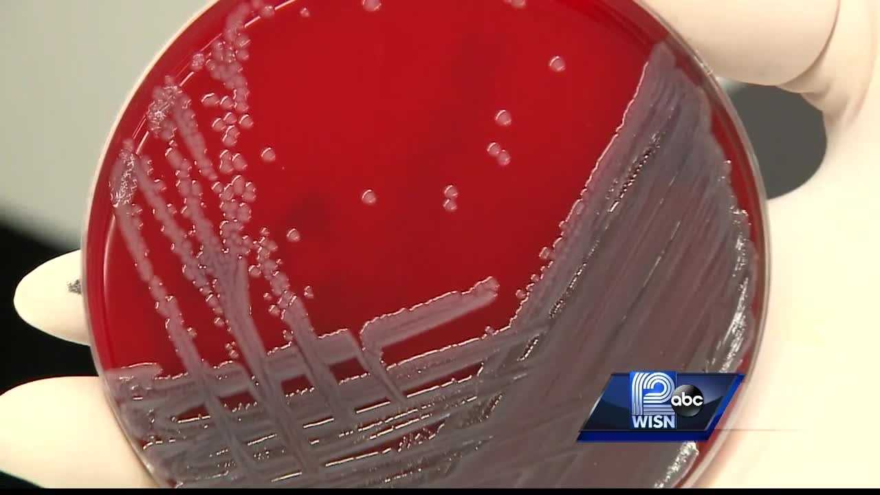 WISN 12 News' Chris Gloninger goes inside a Madison lab for an exclusive look at the bacteria.