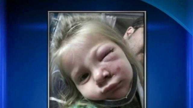 A 2-year-old girl is recovering from surgery after a hit-and-run crash left her with serious injuries to her face.