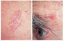Reddish patches or irritated areas that frequently occur on the face, chest, shoulders, arms, or legs.
