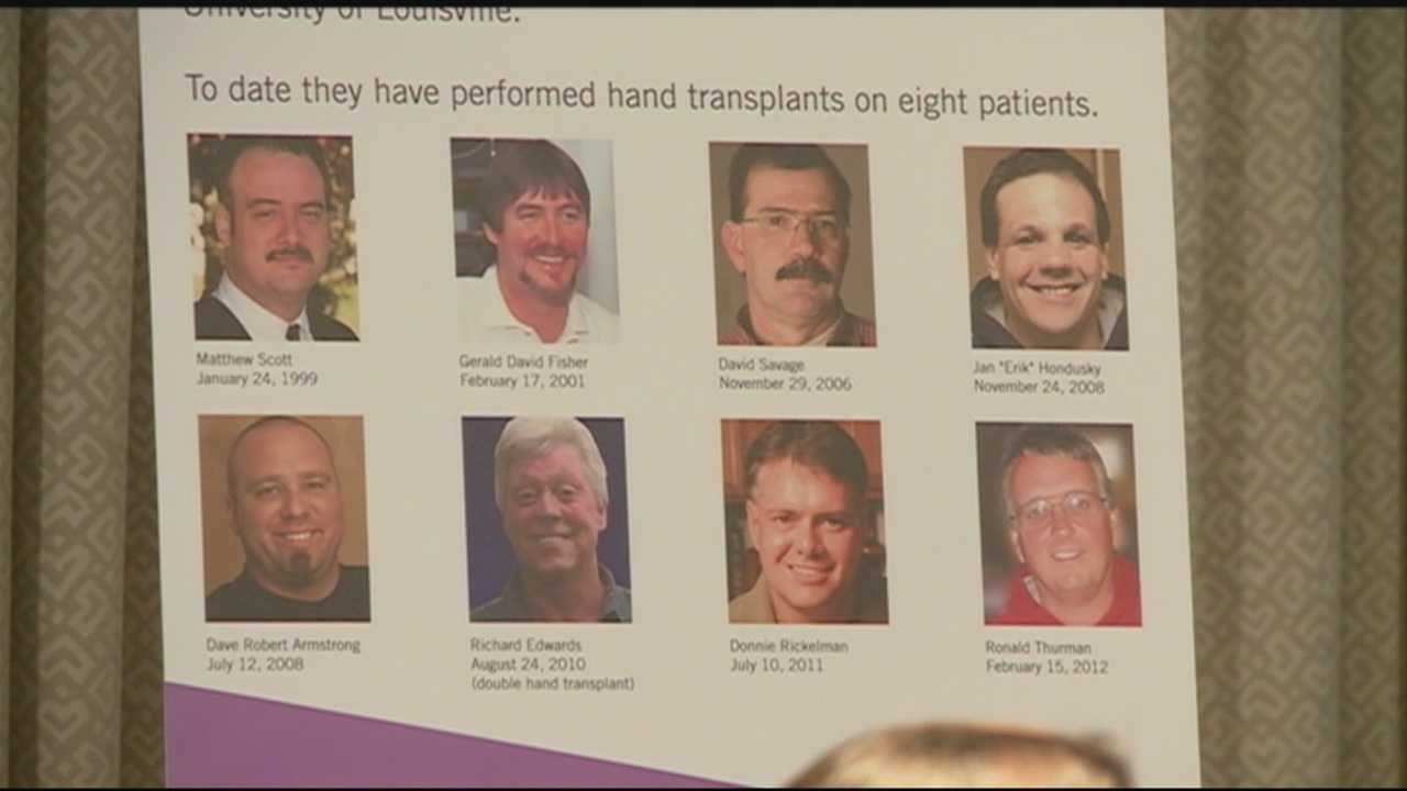 Louisville doctors celebrate 15 years of successful hand transplants Thursday.