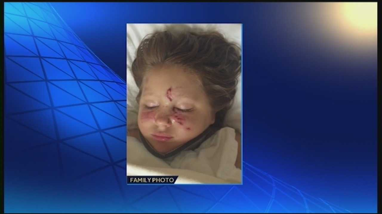 A 6-year-old girl was attacked and injured by two dogs.