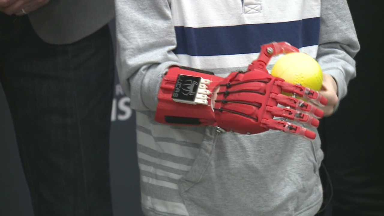 UofL students create prosthetic hand for 6-year-old boy