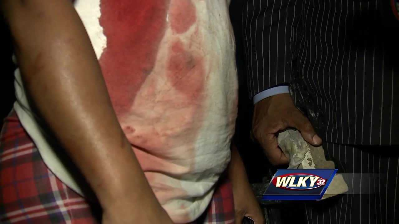 A Louisville woman was stabbed three times Tuesday night and the woman who tried to break up the fight was hit in the head with a brick.