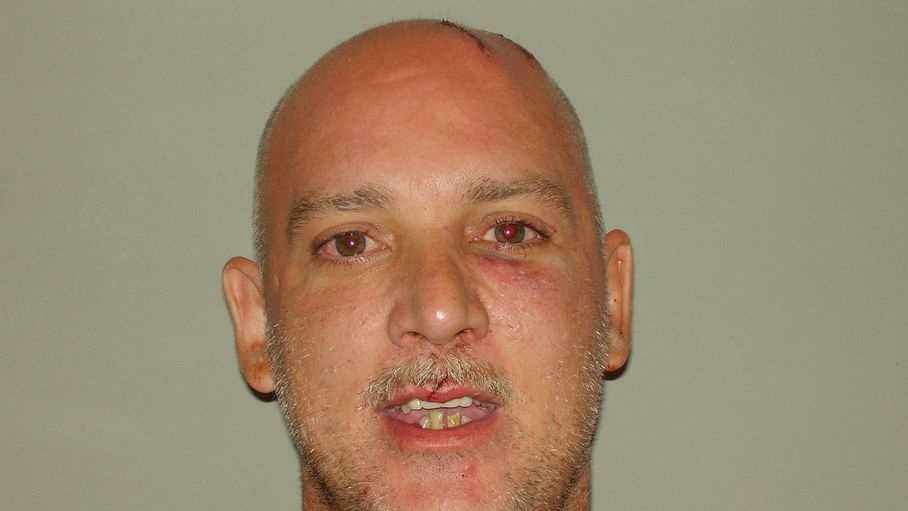 Greg Mullenix, accused of stomping his wife's dog to death. More info here.