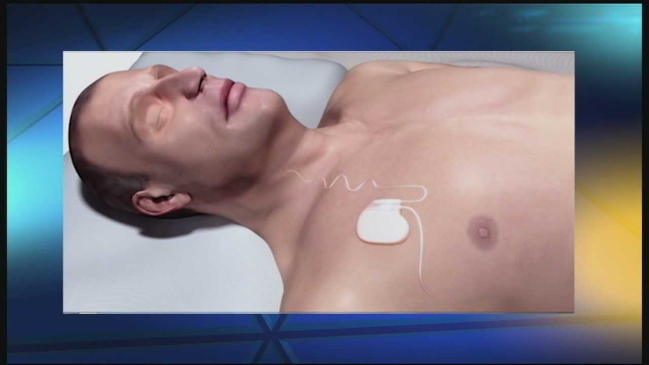 UC Medical Center to treat sleep apnea with implantable device