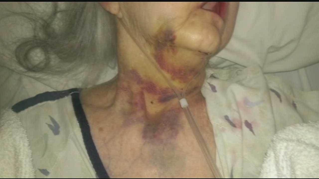 A family said their 68-year-old mother had been assaulted in a Deer Park Nursing Home, but after a police investigation officials said there is no evidence of a crime in the alleged case.