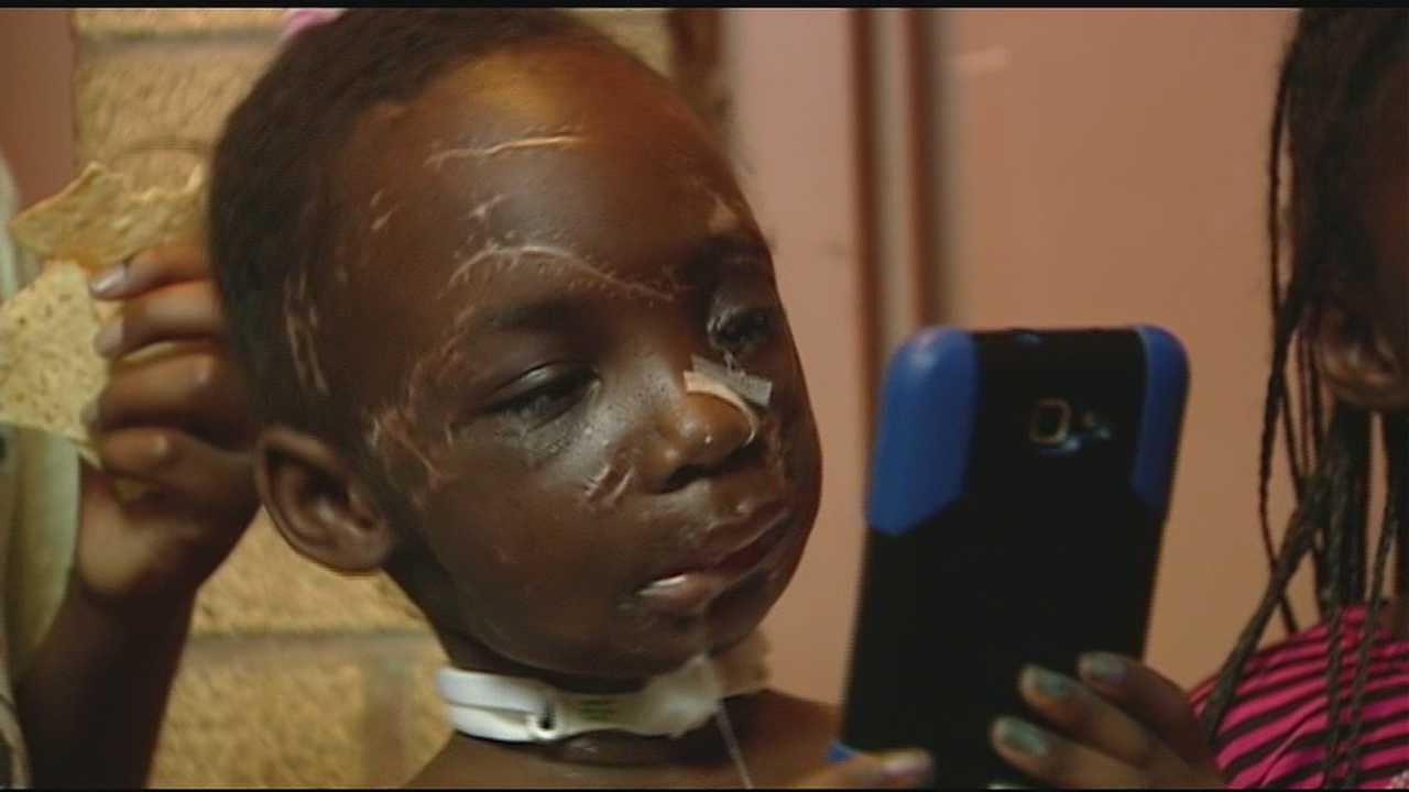 Two months and one day after 6-year-old Zainabou Drame was mauled by two pit bulls, she left Cincinnati Children's Hospital.
