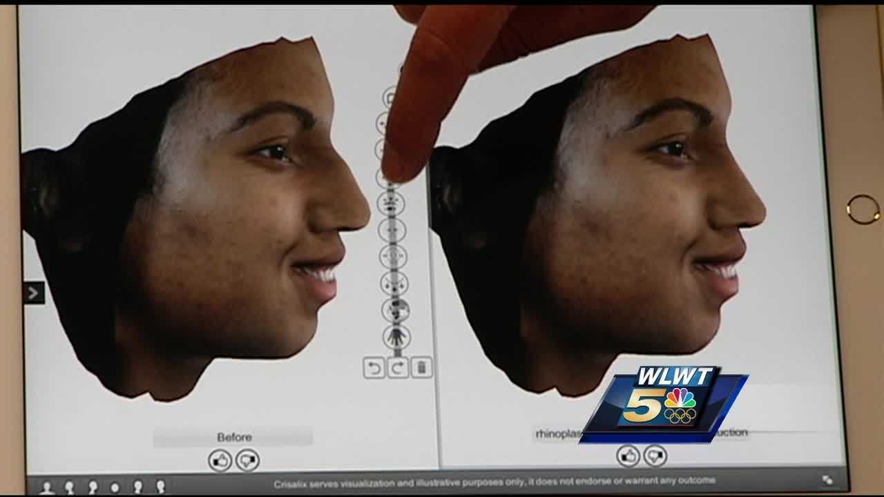 A plastic surgeon in Hyde Park has a new 3D imaging machine. It takes a patient's face or body and creates renderings for a glimpse at what the patient will look like after the person goes under the knife.
