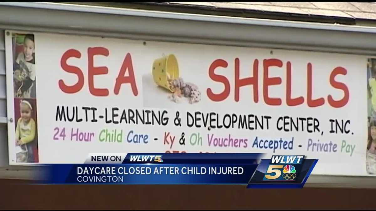 nky day care closes after child suffers burns from hot tea