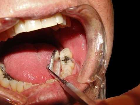 13: Dentists, General - $153,260