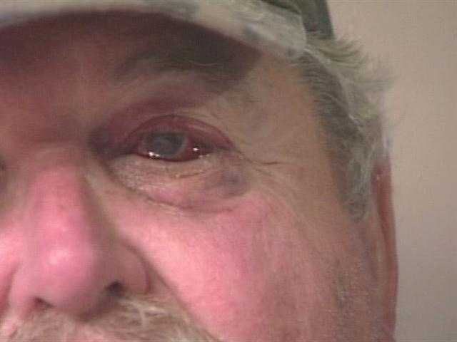 """The only turkey that got shot was me,"" the 61-year-old jokes from inside his Standish home where he's recovering from being shot in his left eye."