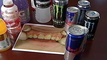 News 8's Steve Minich took a closer look at the damaging effects dentists say energy drinks can have on your teeth.