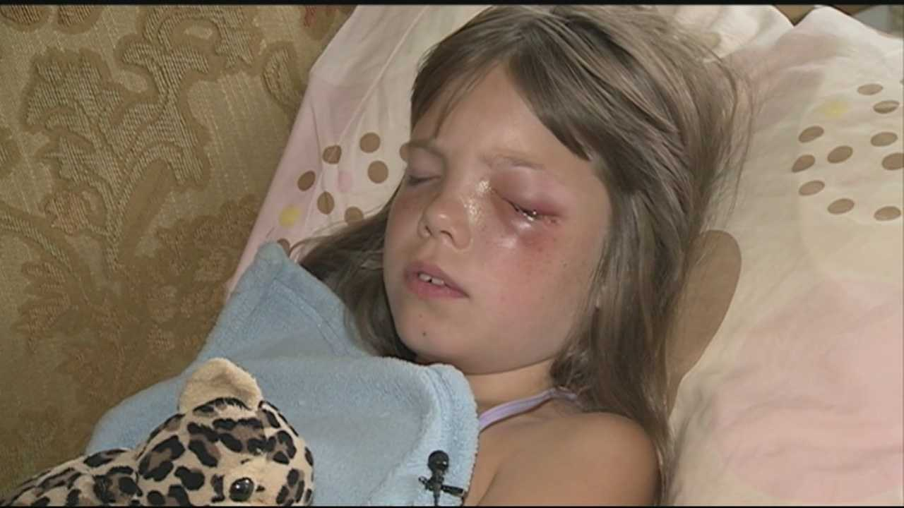 A 9-year-old New Ipswich girl is recovering after undergoing surgery to remove a BB from her eye.