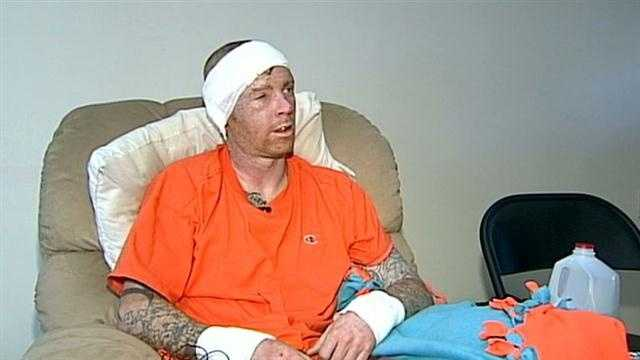 Man suffers burns in bob-house explosion