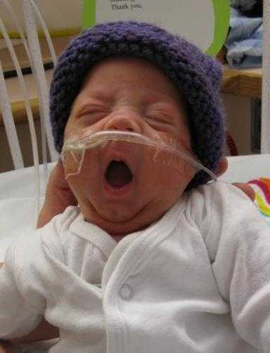 Baby Avi had a 70-day stay in the Intensive Care Nursery (ICN) at the Children's Hospital at Dartmouth (CHaD).