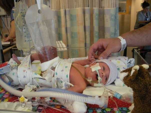 Baby Reagan born at 34 weeks, was affected by gastroschisis, a congenital fissure (or narrow opening) in the abdominal wall usually accompanied by protrusion of the intestines.
