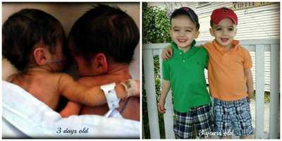 Beautiful brothers Ayden and Konnor share a hug, then and now.