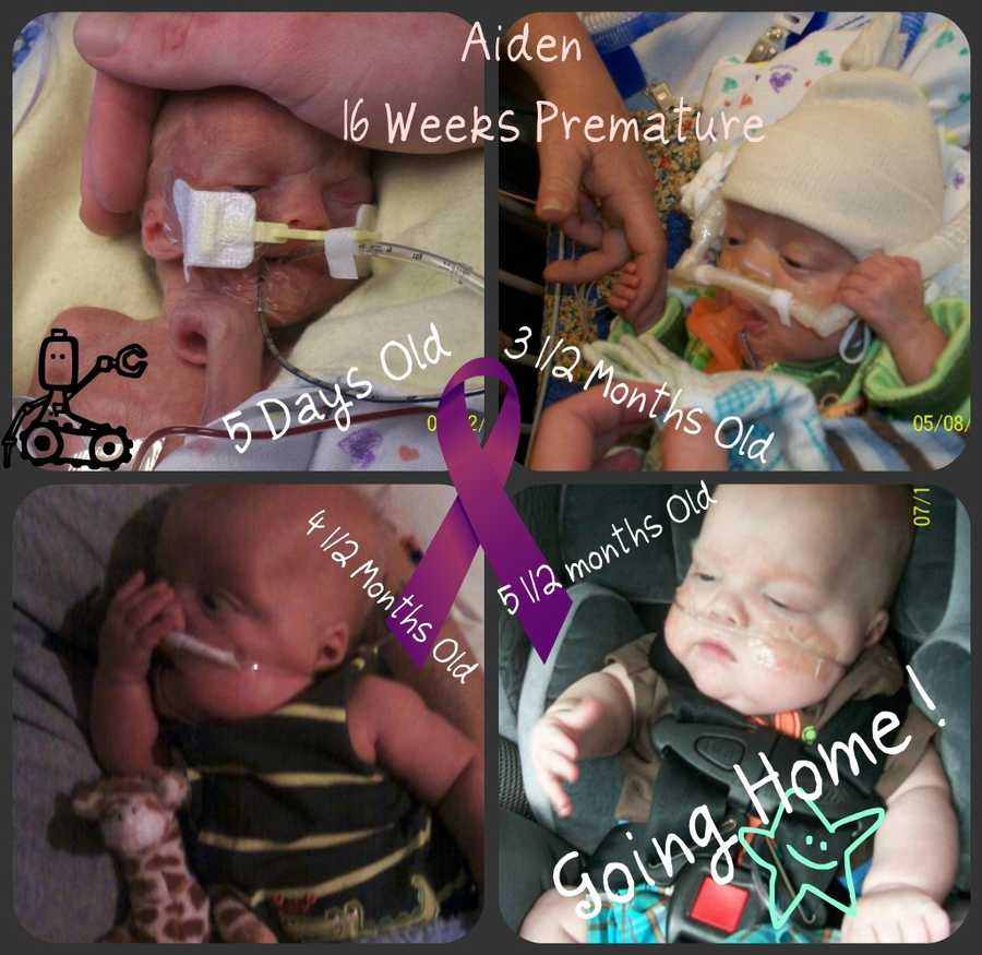 Baby Aiden spent 167 days in the ICN at CHaD.