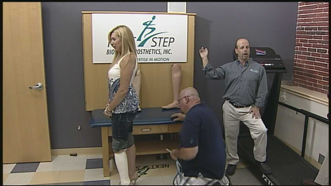 Prosthetic may allow bombing victim to dance again