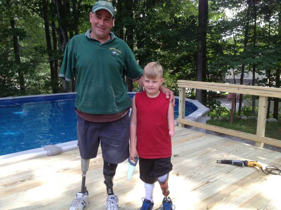 A Manchester boy with prosthetic limbs got a new deck with the help of a construction company whose owner also uses prosthetics.Read more: http://www.wmur.com/page/search/htv-man/news/nh-news/tripleamputee-builds-deck-for-boy-with-severe-birth-defects/-/9857858/21161308/-/53jsucz/-/index.html