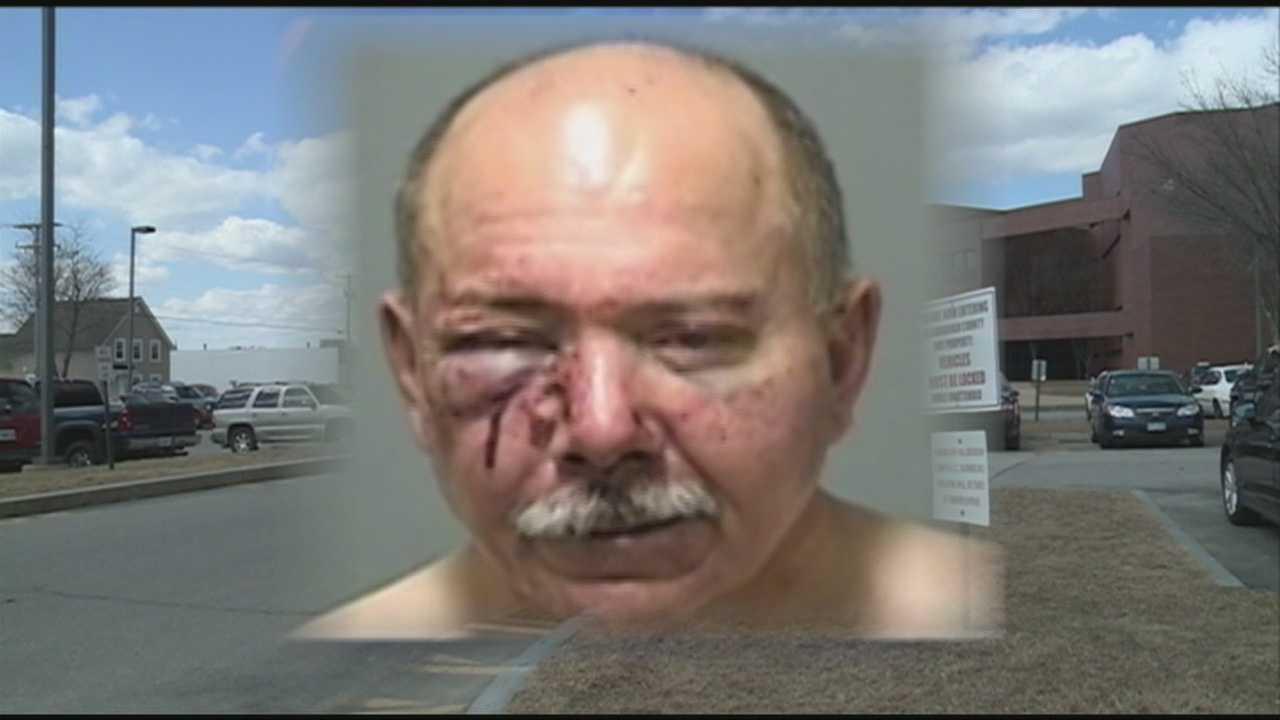 No criminal charges for man left injured
