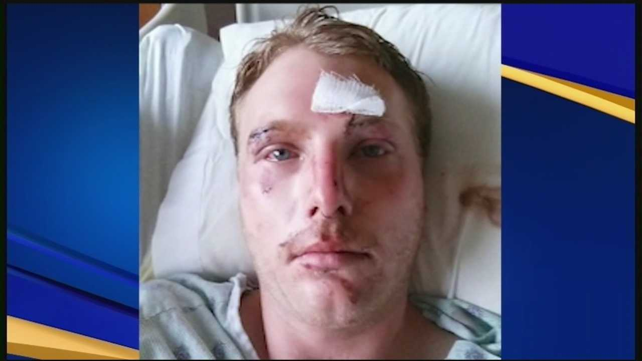 Parents of beating victim say son needs help to recover