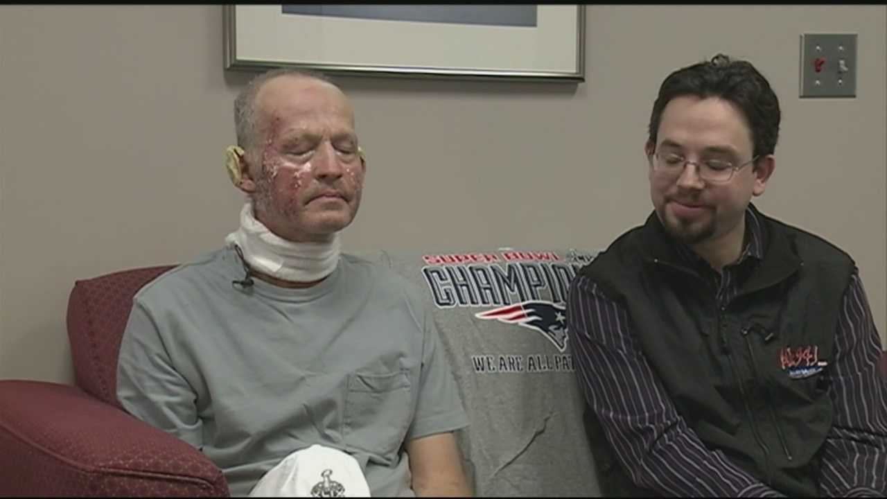 A Danbury man recovering from a tragic fire has received a message of encouragement from the owner of the New England Patriots.