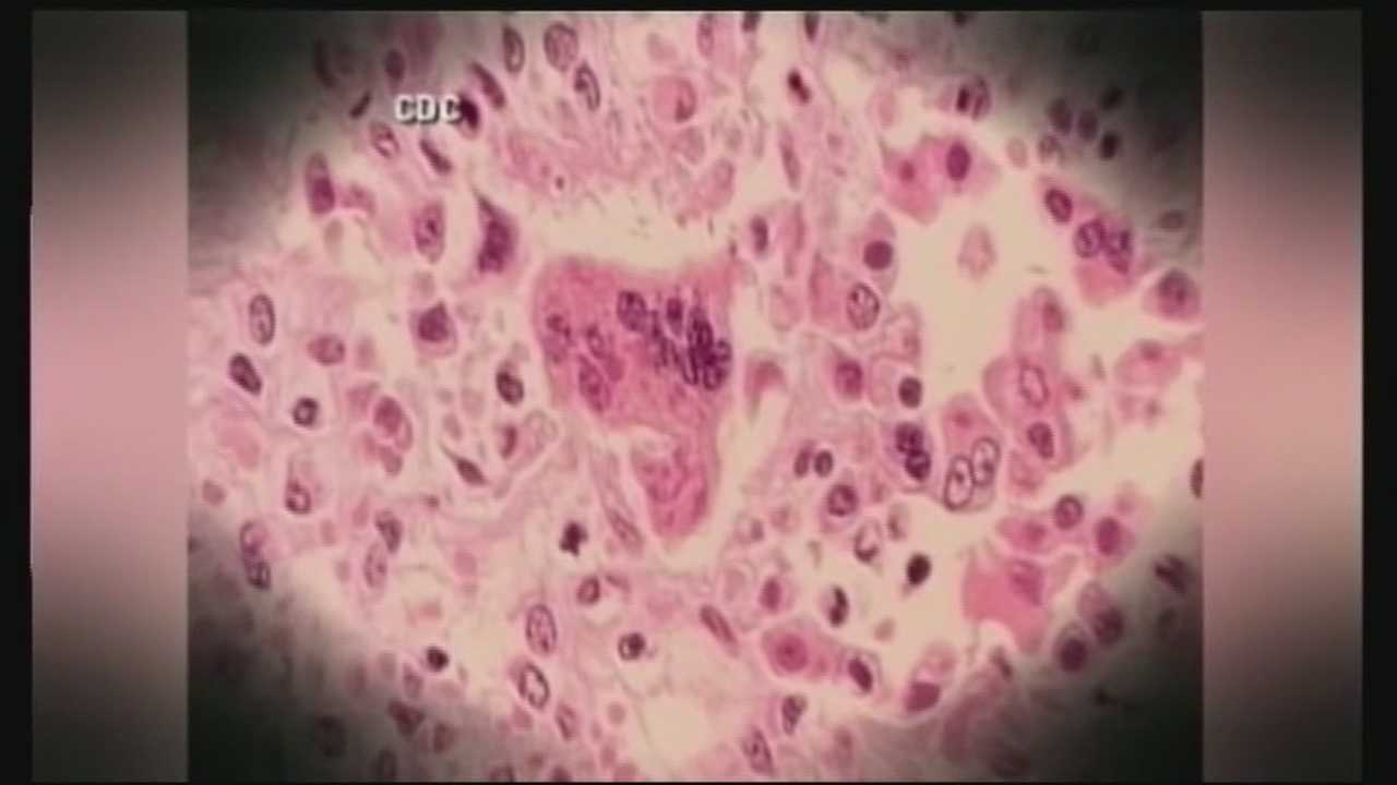 An international traveler infected with the measles virus was recently in New Hampshire, health officials announced Wednesday. WMUR's Stephanie Woods has more.
