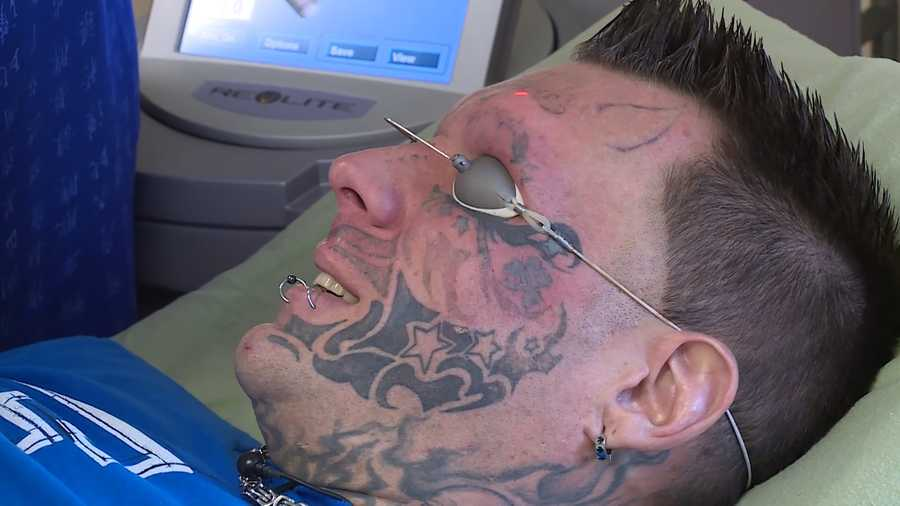 Recovering addict undergoes procedures to remove face tattoos for Tattoo removal maine