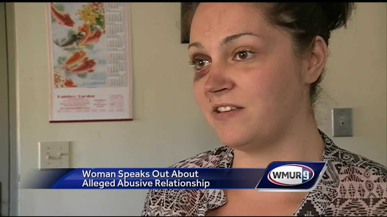 A Manchester woman who says she was assaulted by her boyfriend is speaking out in hopes of helping others.