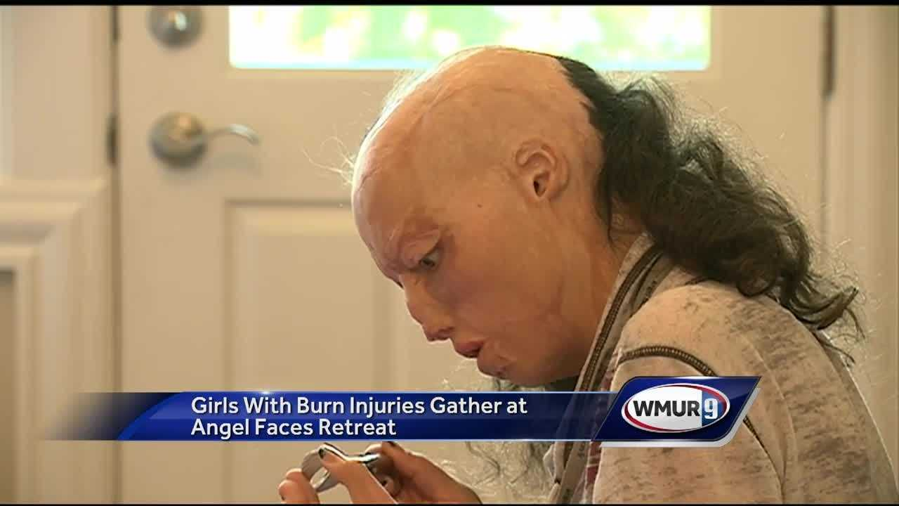 "Where do you go when the world looks at you as different? For 20 girls with burn and trauma injuries, it's a retreat in Wolfeboro called ""Angel Faces,"" where they will start to heal from life-changing scars."