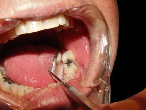 15: Dentists, General - $118,600