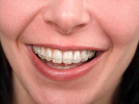 4: Orthodontists - $209,620