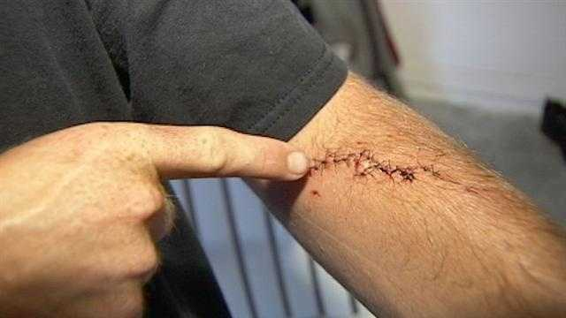 Brandon Taylor shows off his shark bite that happened while he was surfing off the Sebastian Inlet.