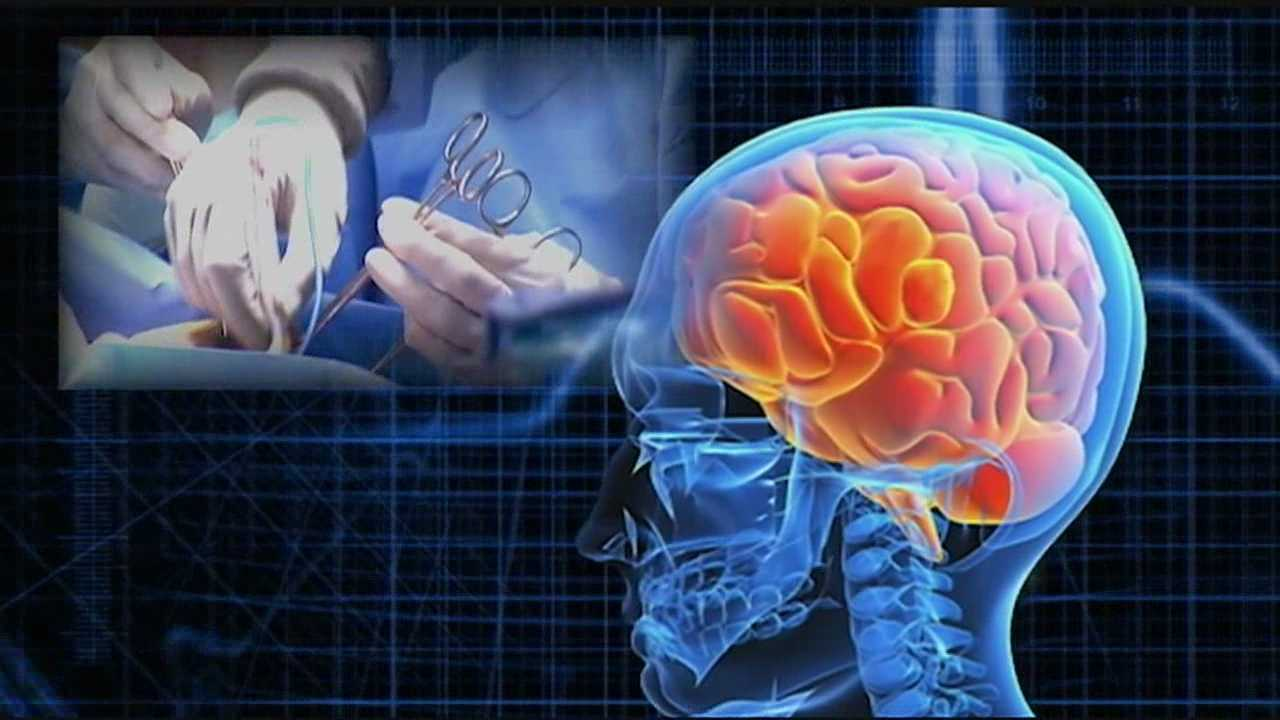 The revolutionary new approach allows doctors to see, access, and remove brain abnormalities through an opening as small as a dime.