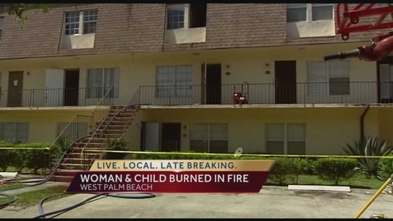 Mother, child hurt in apartment fire