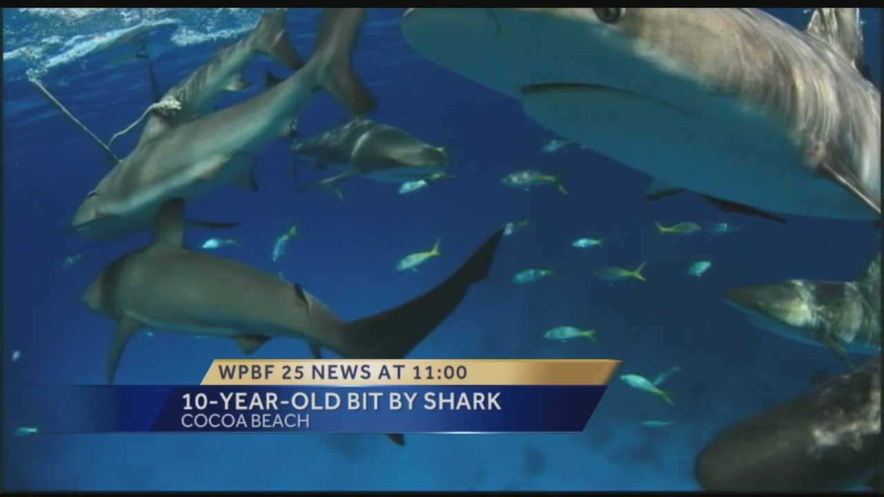 A shark bit a boy along Cocoa Beach over the weekend and rescuers it's  one of the worst bites they've seen in years.