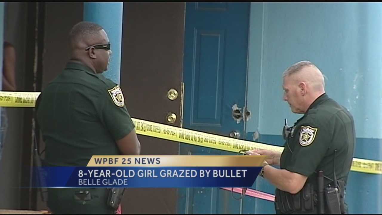 The Palm Beach Sheriff's Office is investigating a shooting involving a child who was grazed by a bullet Sunday.