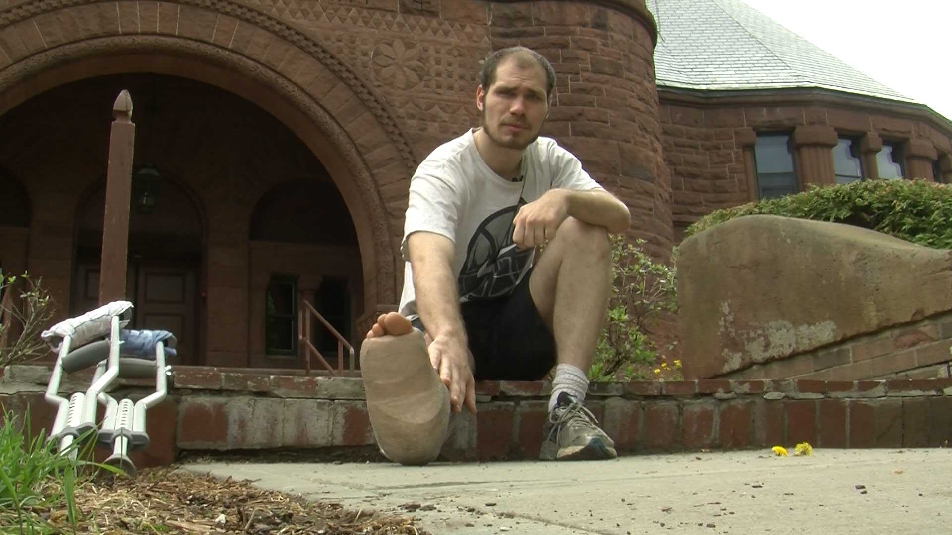 A Burlington man hit by a car while at work wants to warn those on the road to watch out.