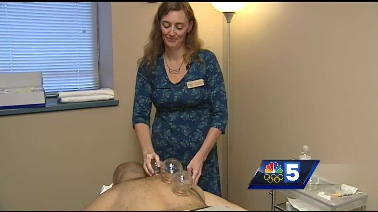 An acupuncturist in Montpelier explains the benefits of Olympic athletes using a pain therapy called cupping.
