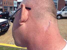 Firefighter Jim Swartz was cut by glass on his neck while responding to an arson in Jeannette.