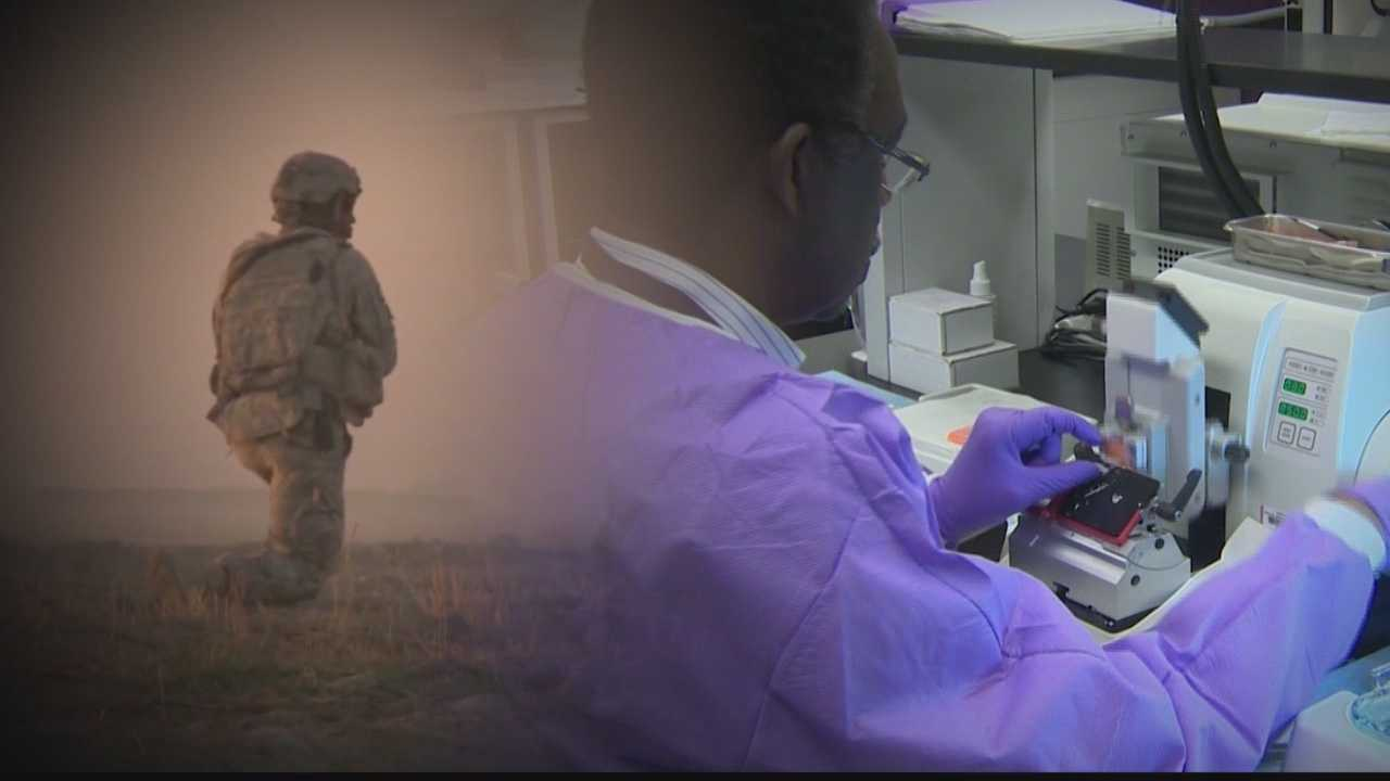 img-Military needs brain tissue for research